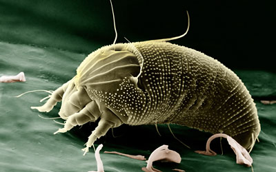 Immunotherapy Tablets For Dust Mite Allergy Reduce Asthma Risk